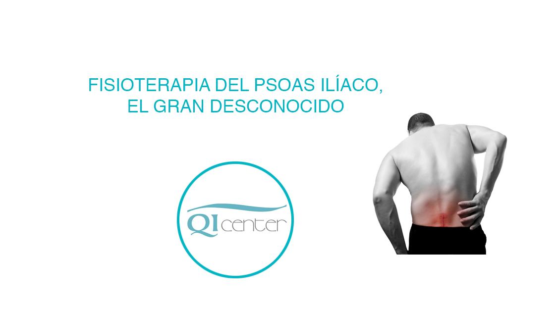 Fisioterapia del Psoas ilíaco, el gran desconocido - Qicenter ...